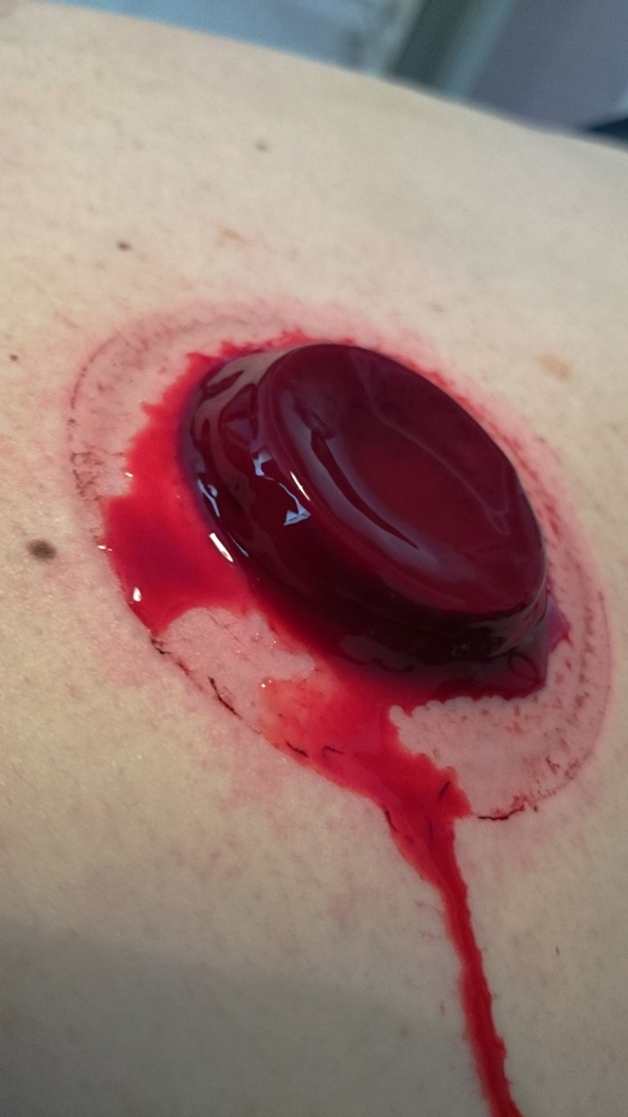 blood cupping end